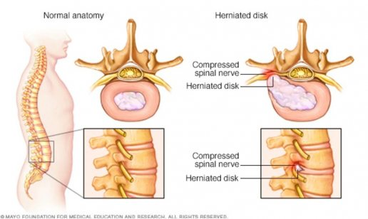 disc herniation, orthopaedic surgery, back pain