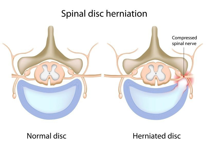 slipped disc, disc herniation, cervical radiculopathy