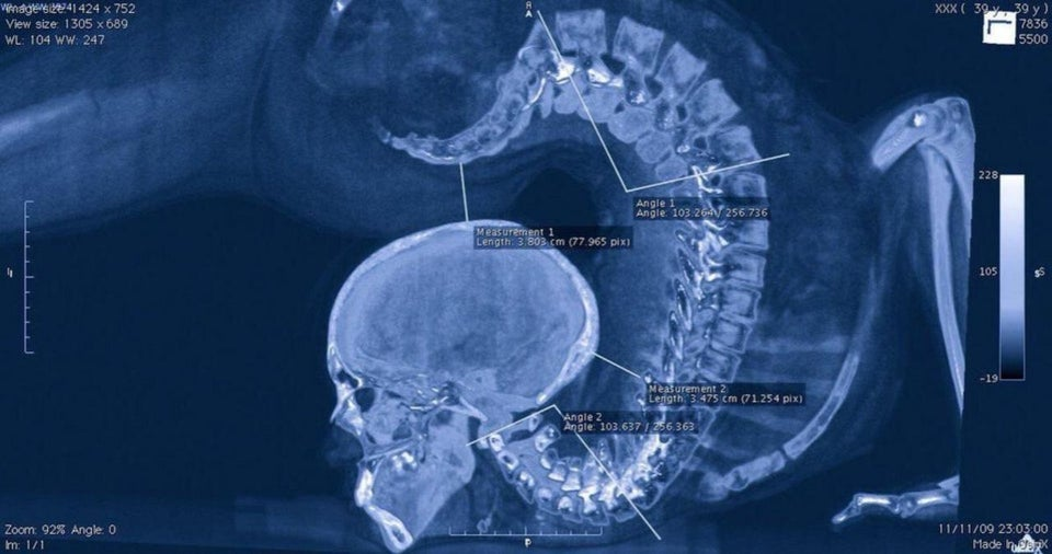 cervical pain, neck pain causes, neck x-ray