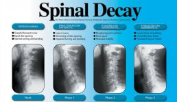 degenerative disc disease, spinal decay