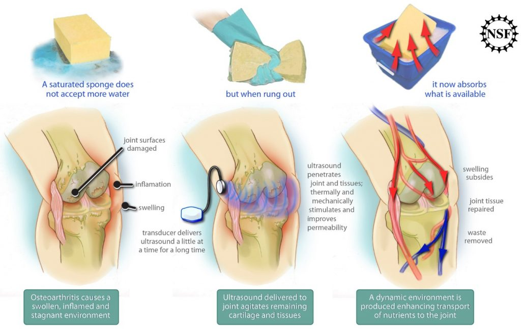 ultrasound therapy, knee osteoarthritis