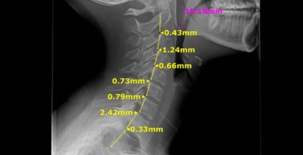upper cervical chiropractor, neck x-ray